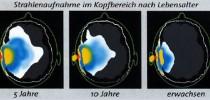 Strahlenaufnahme im Kopfbereich